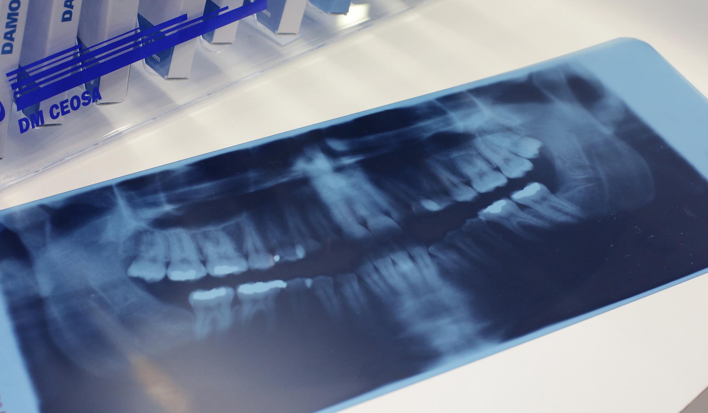 Estudo: Radiografía en la mesa