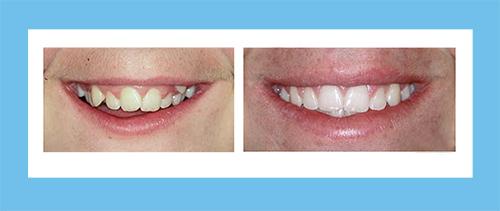 Ortodoncia Encinas Caso 4
