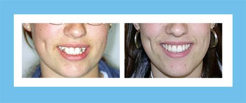 Ortodoncia Encinas Caso 5